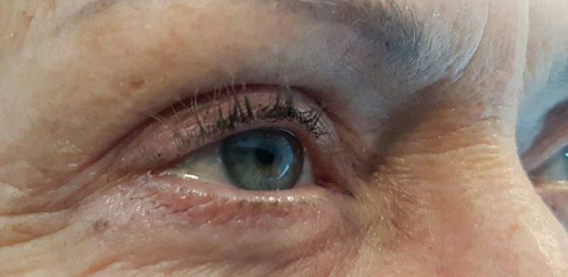 Eyeliner 1ste behandeling ?