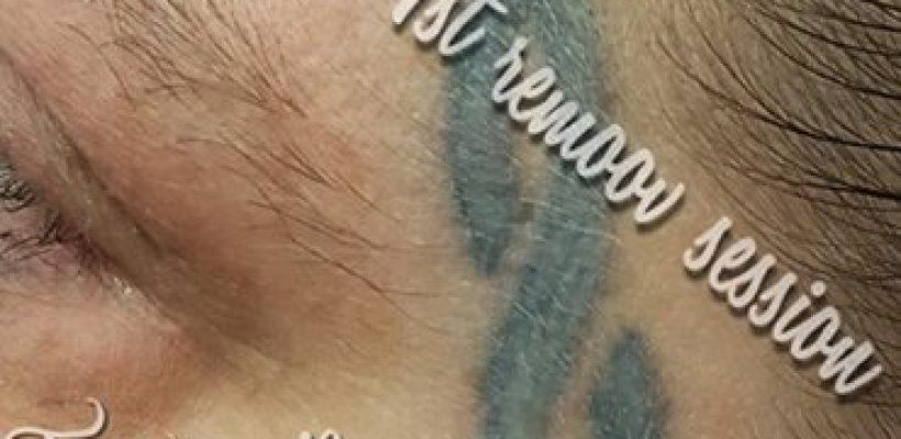 TATTOO REMOOV. pijnloos verwijderen van je tattoo …