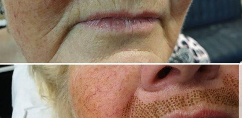 Plasma behandeling ( huidverstrakking) lipplooi en …